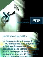 Syndrome de Down