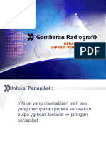 Gambaran Radiografik Keradangan & Infeksi Periapikal