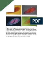 Imagenes Bacterias