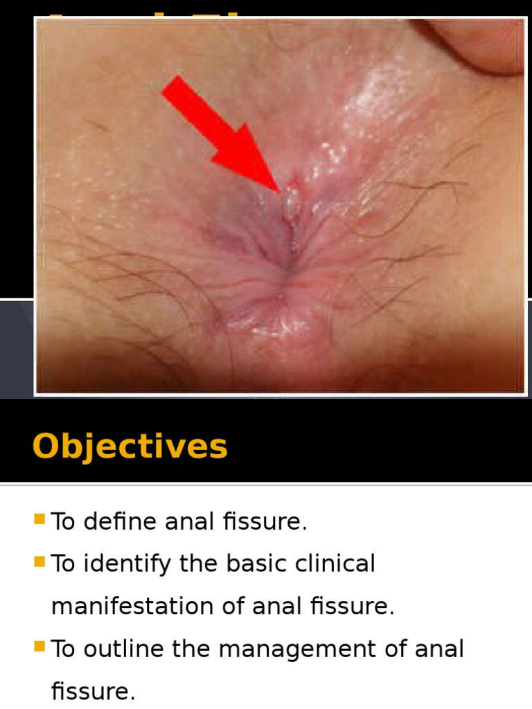 What is anal fissure