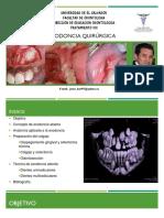 Exodoncia quirúrgica