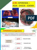 Clase 9 - Hiperemia - Hemorragia - Shock - Edema