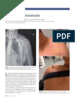 Luxación acromioclavicular.pdf