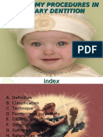 Pulpotomy Procedures in Primary Dentition Pedo