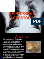 Amiantosis o Asbestosis