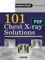 101 Chest X Ray Solutions 2013 Medibos.blogspot.com