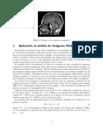 Movimiento browniano aplicado al análisis de imágenes médicas