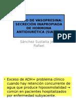 Exceso de Vasopresina SIADH