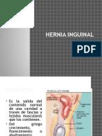 Hernia Inguinal y Hernia Crural