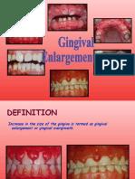 Gngival Enlargement Perio