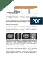 Carcinomatosis