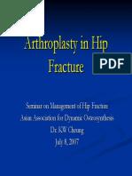 5 Arthroplasty Hip Fracture