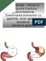 Gastrite