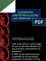 2 Ecografia Obstetrica 11-14 Ss