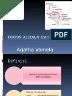 Corpus Alienum Esofagus