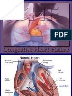 Congestive Heart Failure.ppt