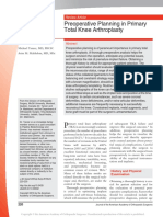 Preoperative Planning in Total Knee Arthroplasty
