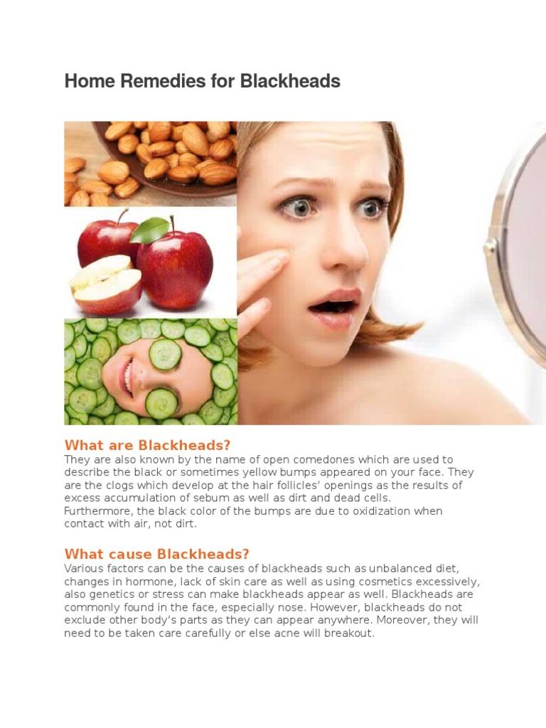 Home Remedies For Blackheads Acne Vulgaris Skin