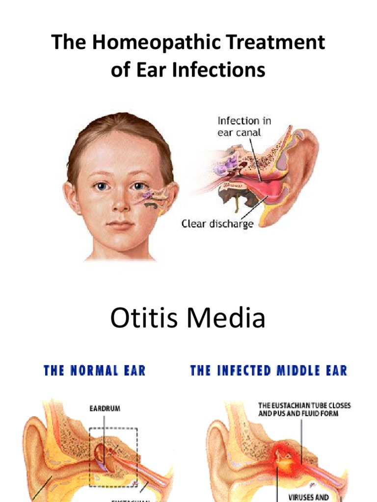 The Homeopathic Treatment of Ear Infections | Human Head And Neck ...