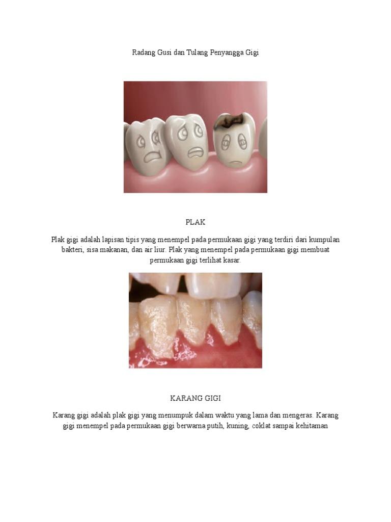 Radang Gusi Dan Tulang Penyangga Gigi