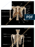 pal3 cadaveraxialthoracicvertebralcgmodiffrompearsonpro