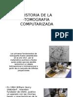 Historia de La Tomografia Computarizada