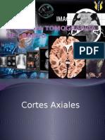 Anatomia Tomografia de Craneo