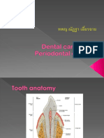 ENT_Dental Caries and Periodontal Disease