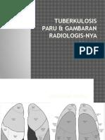 Radiologi Tb