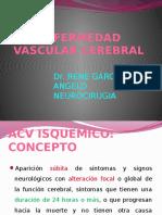 2- ACV ISQUEMICO.pptx