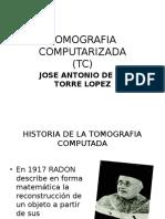 TOMOGRAFIA COMPUTARIZADA.pptx