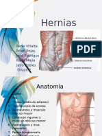 Presentacion Hernias