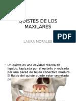 Quistes de Los Maxilares