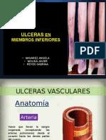 Ulceras en Miembros Inferiores