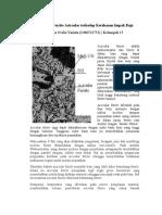Pengaruh Ferrite Acircular Terhadap Ketahanan Impak Baja