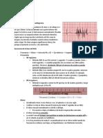 Electrocardiografía by Mena