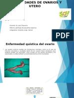 Enfermedades de Ovarios y Utero