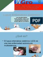 Lupus Erimatoso Sistemico