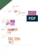 Diferentes morfologías del eritrocito