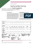 Recurrent Tachycardia During