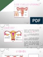 Cáncer-cuello-uterino-.pptx