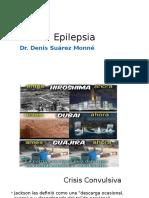 3. Epilepsias..pptx