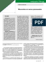 Mucoceles en senos paranasales.pdf.pdf