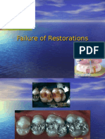 Chp 8.1,6 Failure of Restorations