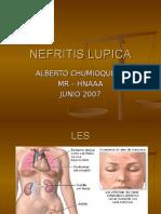 lupus-3.ppt