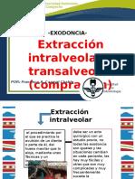 5.Extracción Intra y Transalveolar