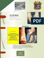 1. EDEMA
