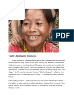 Teeth-Chiseling-in-Indonesia.docx