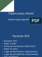 TBC infantil