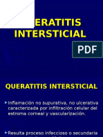 Queratitis Intersticial (HFNSL)